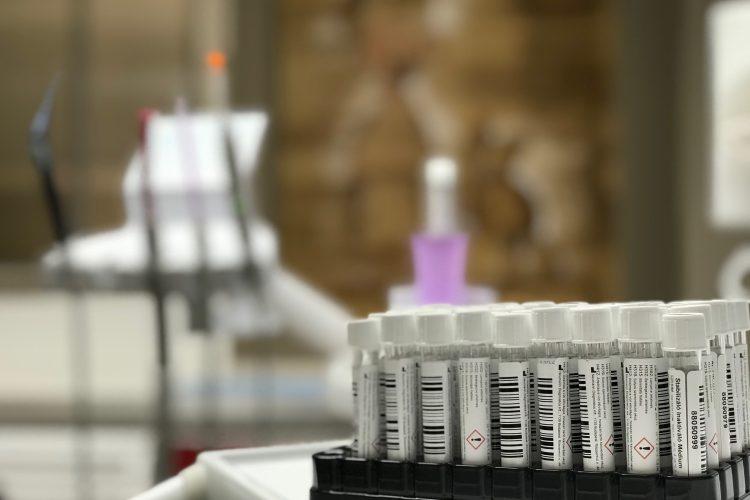 PCR teszt